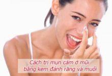 Cách trị mụn cám ở mũi bằng kem đánh răng và muối